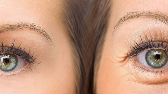 How to get rid of sunken eyes naturally